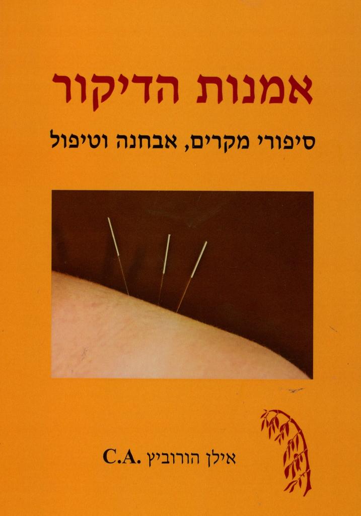 ספר אומנות הדיקור אילן הורוביץ