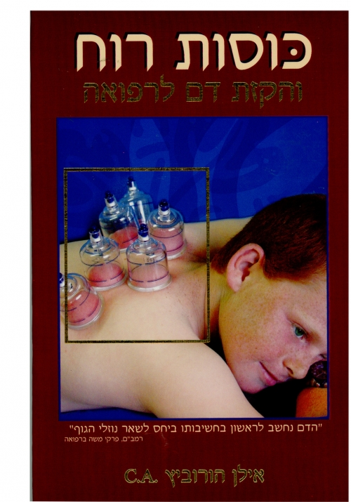 ספר כוסות רוח והקזת דם אילן הורוביץ